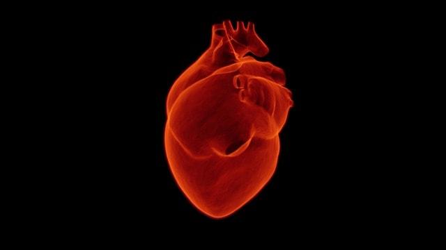 infarto, infarte, enfarto, enfarte